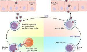 Как лечат инфекционный мононуклеоз?