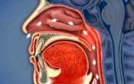 Каковы симптомы воспаления носоглотки?