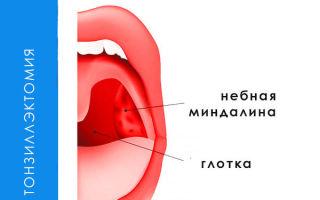 Какие последствия удаления миндалин?