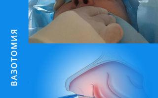 Как проходит вазотомия носовых раковин?