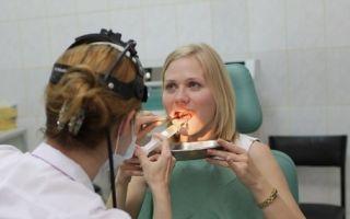 Показания к промыванию миндалин