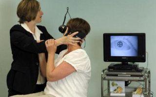 Какие симптомы невриномы слухового нерва?