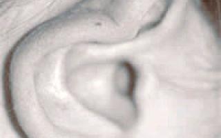 Как делают отопластику ушей?