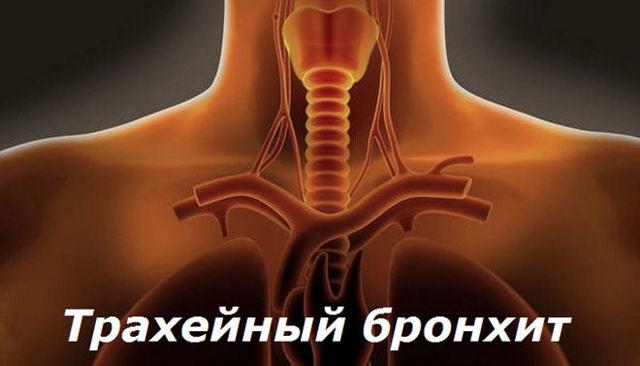 Трахеобронхит: этиология, формы, признаки, лечение