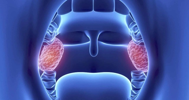 Воспаление миндалин в горле: развитие, симптомы, лечение