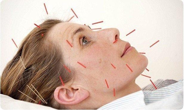 Неврит слухового нерва - причины, симптомы и лечение