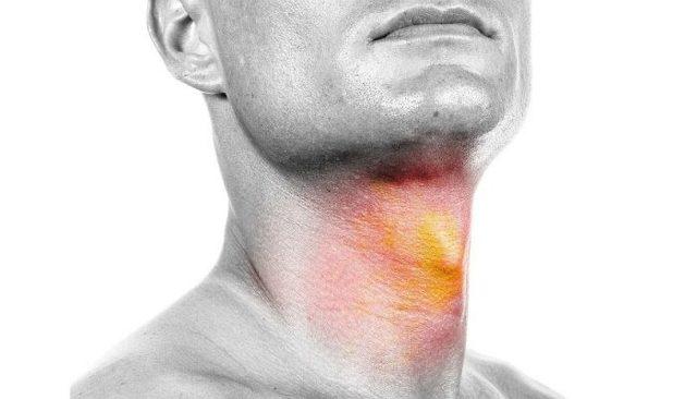 Ожог горла (гортани, слизистой глотки): лечение, симптомы