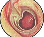 Мезотимпанит хронический: патогенез, течение, лечение